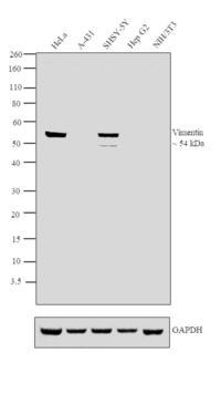 Vimentin Monoclonal Antibodies - Antibody Resource Page