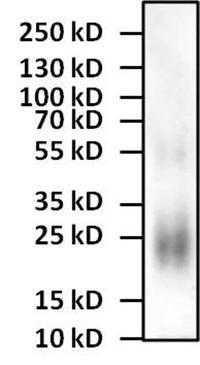 Interleukin 4 Antibodies For Western Blot Antibody